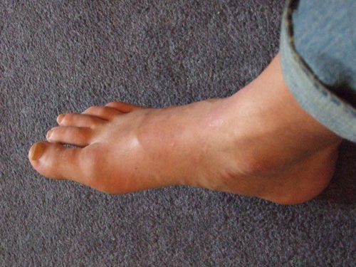 Radio New Zealand : News : National : Alternative gout medication to be available gout